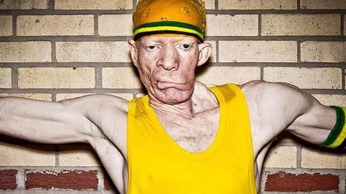 Yellowman : Rencontre avec le King